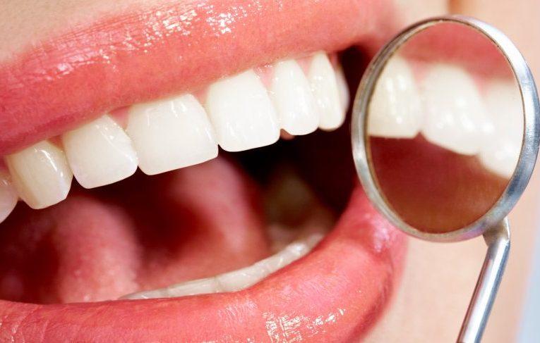 Wskazówki dotyczące dobrego uśmiechu i zdrowych zębów